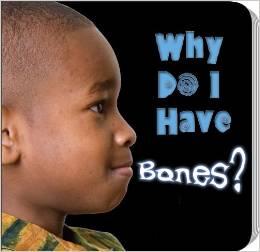 Why Do I have bones