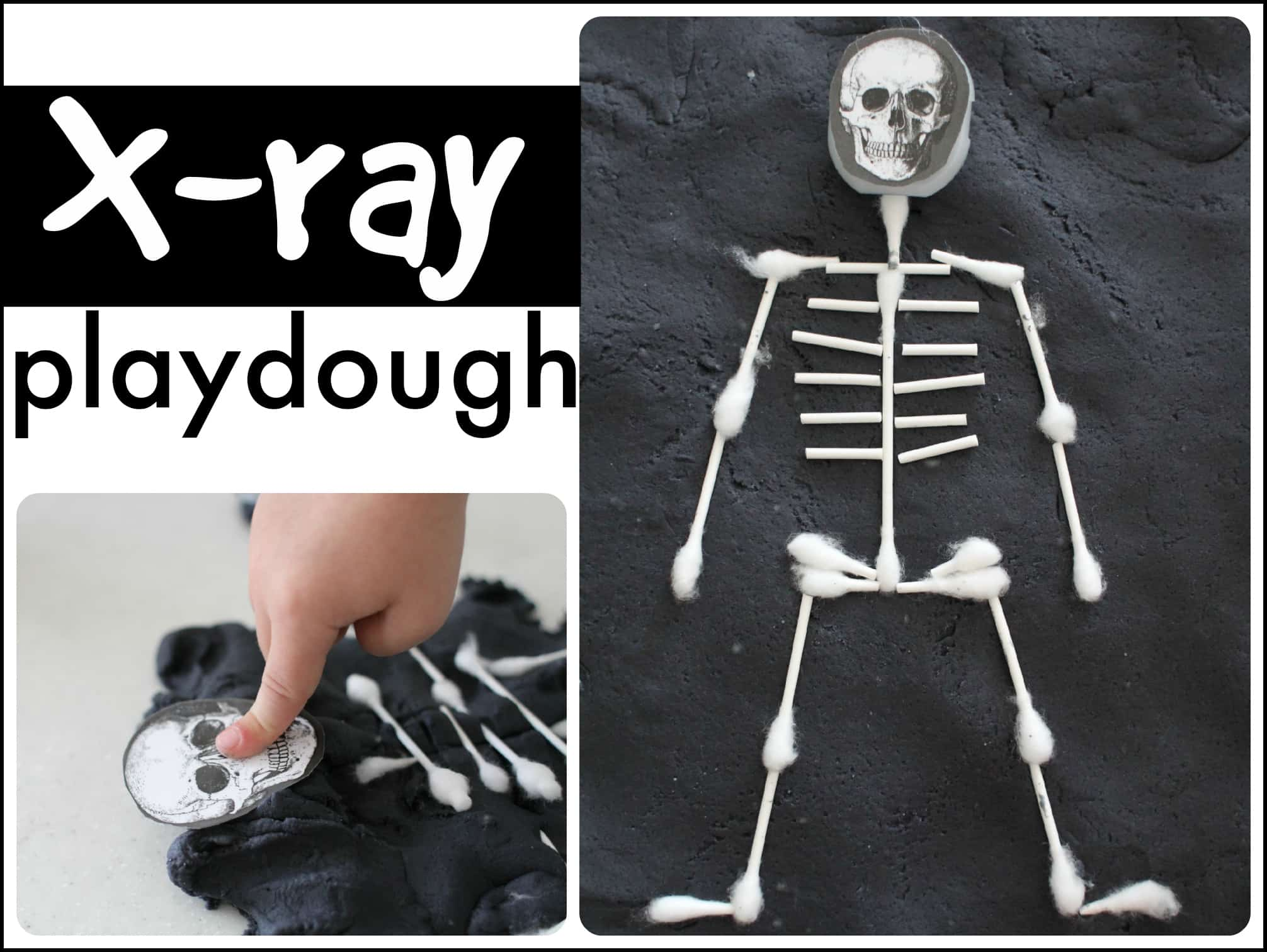 X Ray Playdough I Can Teach My Child